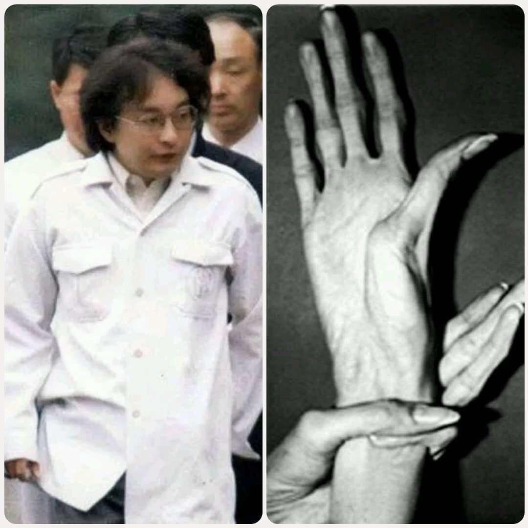 Kondisi Tangan Tsutomu Miyazaki